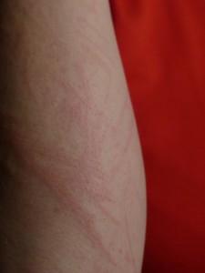Ursachen und Symptome von Allergien. Die Symptome können lokal begrenzt wie auf der Haut am Arm auftreten.