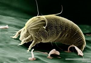 Sind Hausstaubmilben der Grund für eine Allergie empfiehlt es sich Teppiche zu meiden und spezielle Bettwäsche zu nutzen um die Zahl der krankmachenden Milben zu reduzieren.