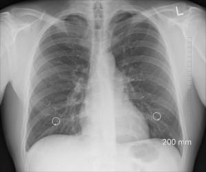 Die menschliche Lunge beseht aus zwei Lungenflügeln die in Lungenlappen unterteilt sind.