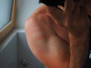 Rötungen der Haut können bei Allergien auftreten.