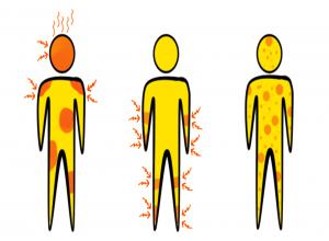 Abhängig von der Allergieart fallen die Symptome unterschiedlich aus.