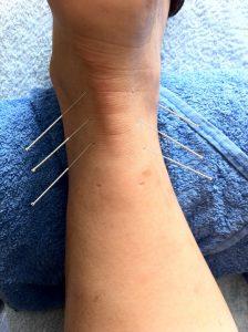 Alternative Heilmethoden wie Akupunktur können bei Allergien helfen.