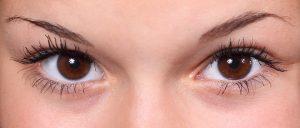 Eine Allergie durch Augenbrauen-Färben kann zu Symptomen auf der Haut führen.