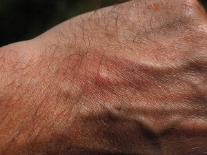 Der Botenstoff Histamin spielt eine große Rolle bei allergischen Symptomen.