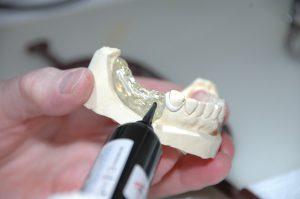 Im Zahnersatz kann Palladium enthalten sein, der zu einer Palladiumallergie führen kann.