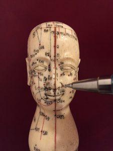 Wie Akupunktur bei Allergien helfen kann.