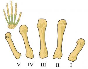 Rheuma macht sich als erstes an den Fingergelenken bemerkbar.