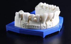 Zahnersatz aus Kunststoffen ist in der Regel allergenfrei.