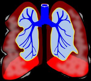Asthma kann unterschiedlich stark ausgeprägt sein.