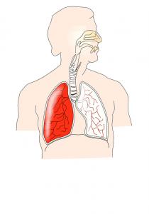 Die möglichen Atemwegserkrankungen sind vielfältig.